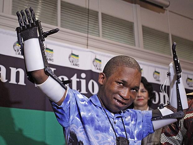 O jovem Flippie Engelbrecht com suas mãos robóticas na Cidade do Cabo (Foto: Schalk van Zuydam/AP)