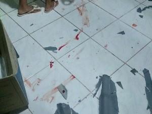 Suspeito de machucou ao cair do telhado da casa  (Foto: Arquivo pessoal)