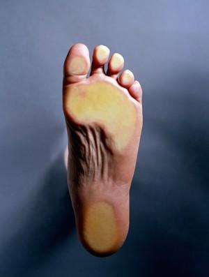 sola do pé eu atleta (Foto: Getty Images)