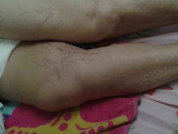 Perna da senhora de 72 anos está inchada; fratura no fêmur direito aconteceu após queda em supermercado de Águas Lindas (Foto: Arquivo pessoal/Divulgação)