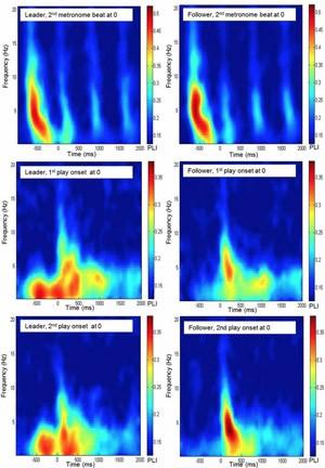 Leitura do sinal neural dos músicos no estudo (Foto: Max Plank Institute, Sänger et al./Divulgação)
