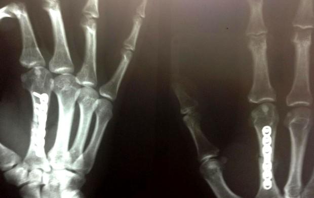 MMA Yan Cabral chapa pinos na mão (Foto: Reprodução / Facebook)