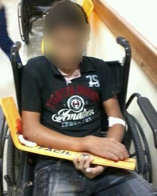 Menor quebrou e sofreu ferimentos pelo corpo (Foto: Genival Moura/G1)