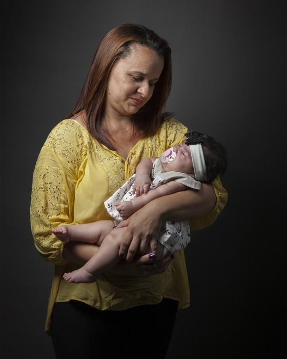 """""""O pior é a falta de informação e de apoio"""", diz mãe de bebê com microcefalia"""