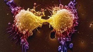 Mutação genética está ligada a forma agressiva de câncer de próstata (Foto: BBC)