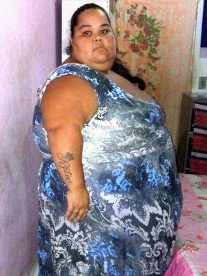 Resultado de imagem para Jovem faz apelo e diz que atingiu 215kg após erro médico em parto
