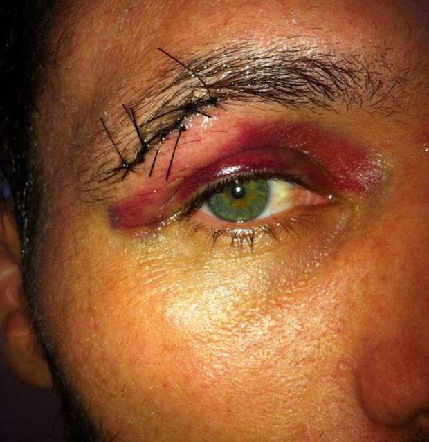 MMA Rodrigo Damm (Foto: Reprodução/Twitter)
