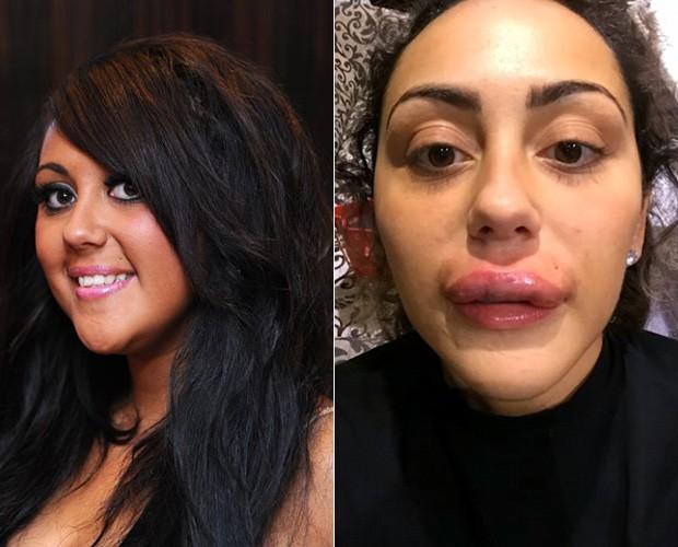Sophie Kasaei antes e depois dos preenchimentos labiais (Foto: Reprodução)