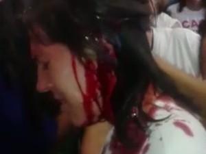 Professores denunciam que foram agredidos por guardas municipais em Goiânia, Goiás (Foto: Reprodução/TV Anhanguera)