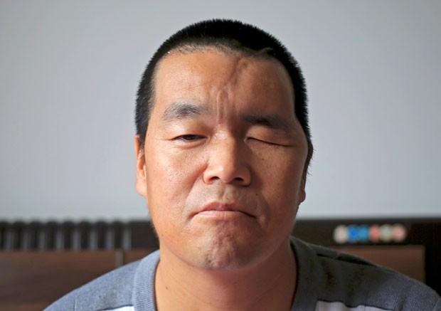 Chinês se recupera após ter crânio reconstruído com ajuda de impressora 3D (Foto: China Daily/Reuters)