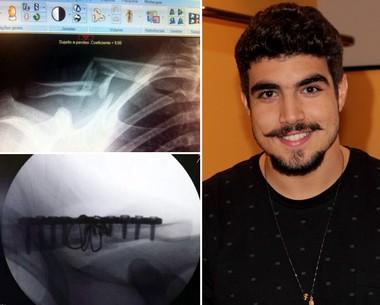 Caio Castro mostra radiografia de antes e depois da cirurgia (TV Globo/Altas Horas e Acervo pessoal)