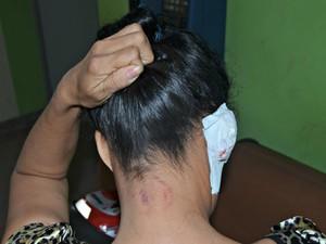 Vítima recebeu várias mordidas pelo corpo (Foto: Adelcimar Carvalho/G1)