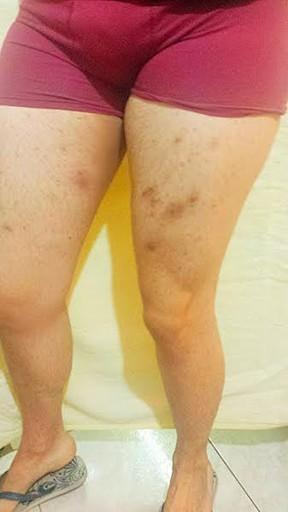 Infecção nas pernas de Ken Humano