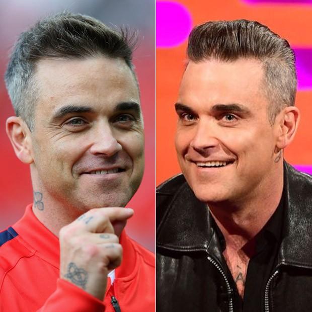 Robbie Williams, em junho, antes do procedimento, e atualmente (Foto: Getty Images e Divulgação / BBC)