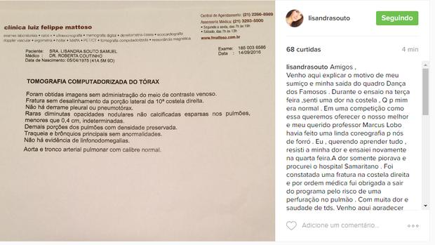 Lizandra Souto (Foto: Reprodução/Instagram)