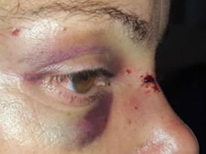 Mulher teve ferimentos no rosto, braços e costas após ser agredida em Jundiaí (Foto: Darlei Antonio / GM)