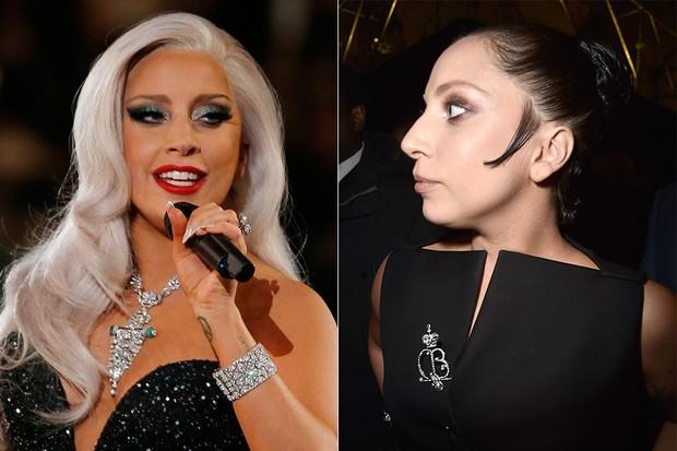 Lady Gaga - Antes e Depois (Foto: Agência Getty Images - Agência Reuters)