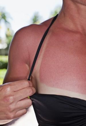 eu atleta queimadura (Foto: Getty Images)