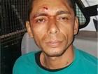 Detento é achado esquartejado dentro da penitenciária de Roraima