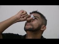 Surto de conjuntivite em Minas Gerais liga alerta para cuidados com a saúde dos olhos