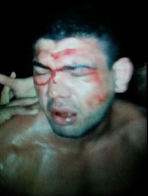Antônio Braga Neto MMA UFC (Foto: Arquivo Pessoal)