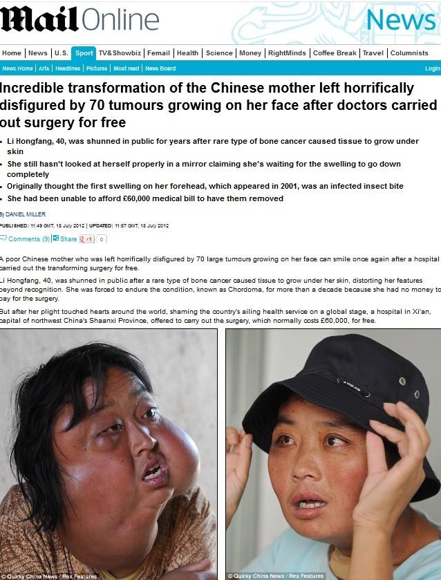 Chinesa (Foto: Daily Mail/Reprodução)