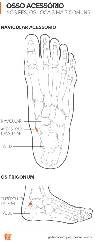 Ossos a mais se desenvolvem nos pés e causam dores e