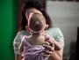 Estudo sobre zika pode levar Brasil a mudar protocolo de microcefalia