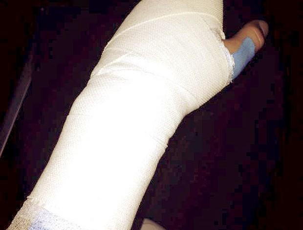 Casillas mão machucada  (Foto: EFE)
