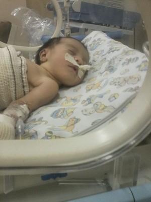 A pequena Ludymilla nasceu com o abdômen aberto e precisou passar por cirurgia (Foto: Wellington Ferreira/Arquivo Pessoal)