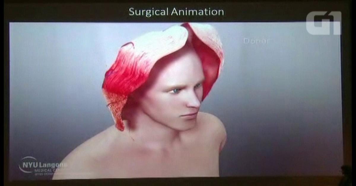 filme do transplante facr - Magazine cover