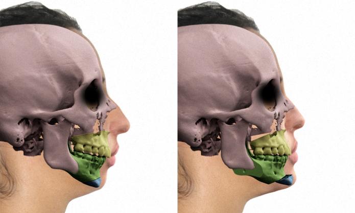 Uso de modelagem 3D em cirurgias faciais (Foto: Reprodução/Cícero Moraes) (Foto: Uso de modelagem 3D em cirurgias faciais (Foto: Reprodução/Cícero Moraes))