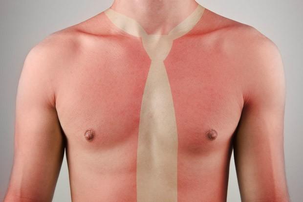 Além de prevenir doenças, protetor solar evita as desagradáveis queimaduras (Foto: GQ Brasil)