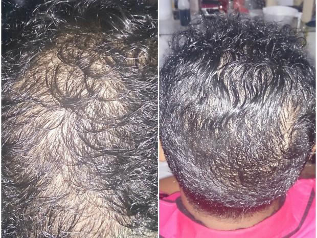 Foto mostra resultado após seis sessões de tratamento  (Foto: Arquivo pessoal)