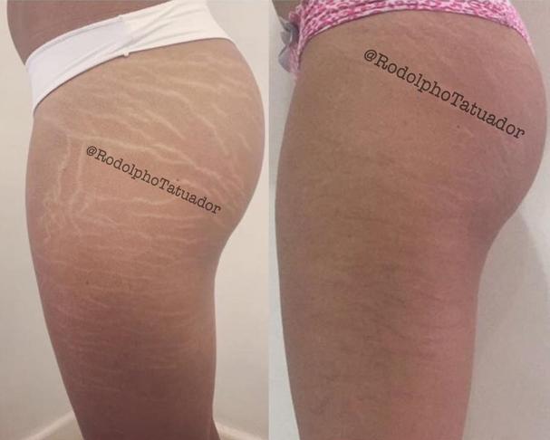 """Antes e depois do tratamento feito pelo tatuador. """"Apenas 17 dias após o procedimento"""", diz a legenda (Foto: Reprodução Instagram)"""