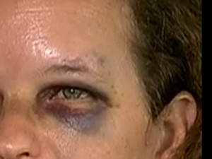 Professora de Franco da Rocha, SP, vítima de violência de alunos