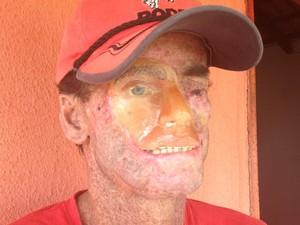 Djalma Antônio Jardim, 39, tem rosto deformado em função do xeroderma pigmentoso (Foto: Fernanda Borges/G1)