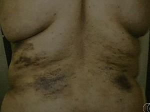 Médico legista registrou as agressões nas costas da mulher, em Niquelândia, Goiás (Foto: Reprodução/ TV Anhanguera)