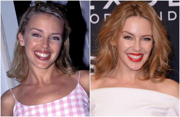 A diva australiana do pop, Kylie Minogue, estava com 26 anos em fevereiro de 1995. Atualmente tem 46, e o mesmo sorrisão de sempre. (Foto: Getty Images)