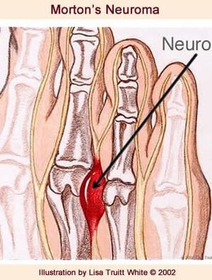 Neuroma Morton Eu Atleta (Foto: Reprodução)