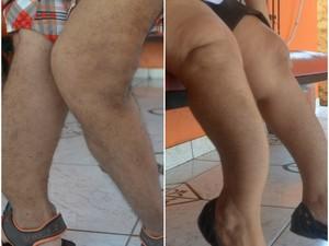 Pernas de irmãos apresentam deformidades por causa de fraturas (Foto: Abinoan Santiago/G1)