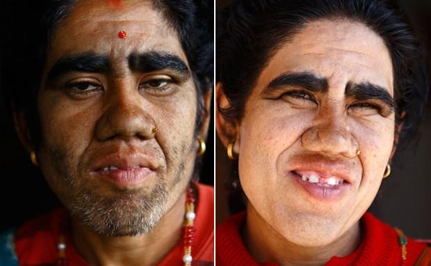 Devi Budhathoki, de 38 anos, posa para foto antes e depois de iniciado o tratamento para remoção de pelos da face. (Foto: Reuters/Navesh Chitrakar)