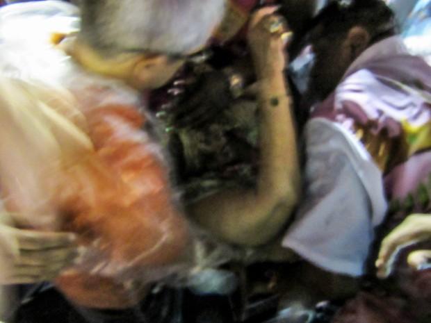 Alcione é socorrida após queimar o pé  (Foto: Janaína Carvalho/G1)