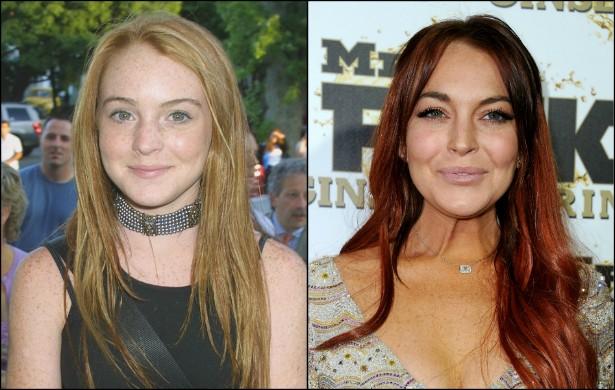 Dizem que agora Lindsay Lohan está se recuperando. Tomara. Além de atrapalhar sua vida, seus problemas com álcool e outras drogas lhe renderam uma aparência não muito agradável. Veja como estava a atriz em 2001, com 15 aninhos, e em 2012, com 26. (Foto: Getty Images)