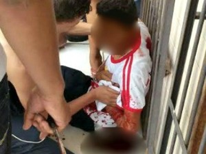 Aluno foi atingido a tesouradas no Acre (Foto: Arquivo Pessoal)