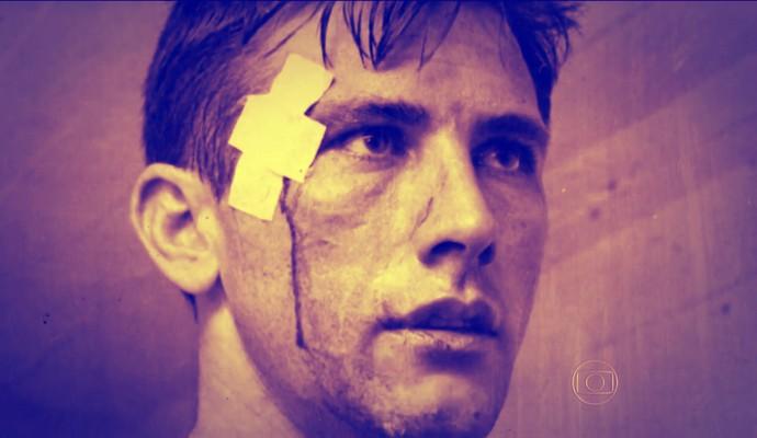 Bellini em foto antiga com curativo na cabeça (Foto: Reprodução TV Globo)