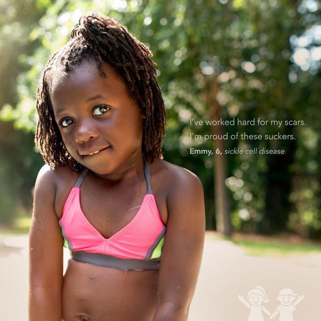 """""""Trabalhei duro pelas minhas cicatrizes.Tenho orgulho delas"""". Emmy, 6, anemia falciforme (Foto: KATE T. PARKER/CHOA)"""