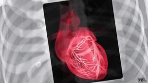 Insuficiência cardíaca é problema comum entre pessoas que sofreram ataque do coração (Foto: BBC)