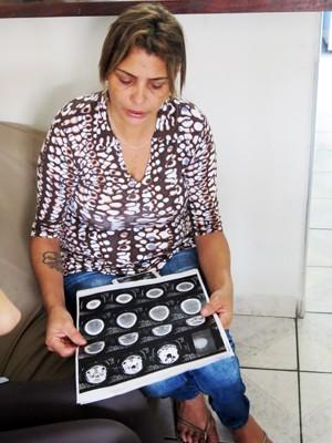 Mãe de torturada em Praia Grande afirma que jovem teve lesão na cabeça (Foto: Guilherme Lucio/G1)