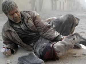 Um homem ferido segura a perna após um ataque aéreo no bairro de Hanano na cidade síria de Aleppo. (Foto: Khaled Khatib/AFP)